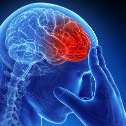 سکته قلبی و مغزی چگونه رخ میدهد؟