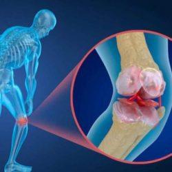 نقش تغذیه در پیش گیری از پوکی استخوان
