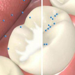 فیشورسیلانت و فواید آن برای دندان دائمی