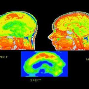 ترکیب تصاویر مهندسی پزشکی