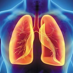 بیماری اِدِم ریه چیست؟