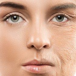 علائم پیری پوست