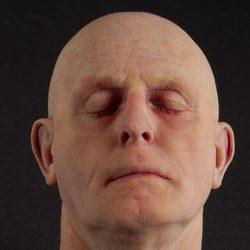 رفع نقص چهره با چاپگر سه بعدی